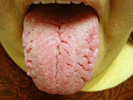 lengua cerebro